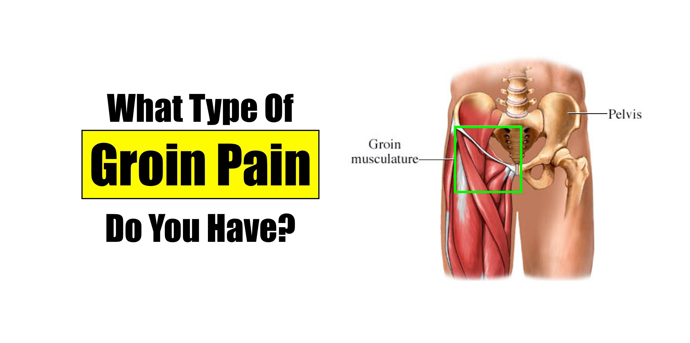 What Kind of Groin Pain Do You Have? – Squat University