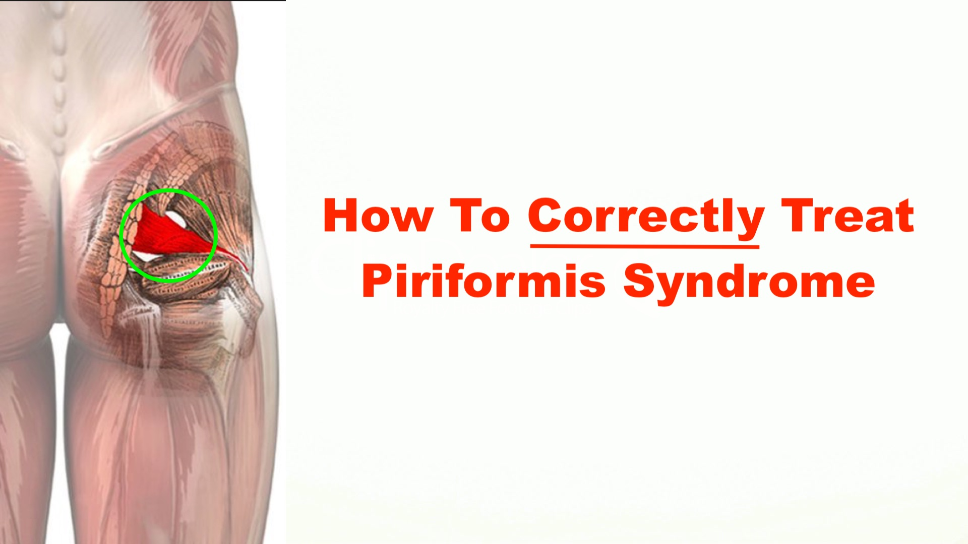 How to Correctly Treat Piriformis Syndrome – Squat University